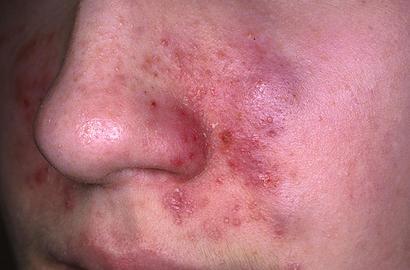 Maquillage périmé : attention, danger de mort !